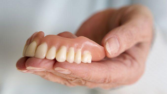 Biaya Pasang Gigi Palsu Terbaru | Biaya.Info